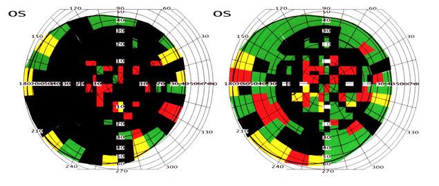 retinitis pigmentosa therapie